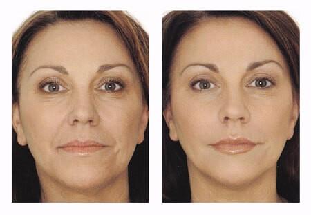 мезотерапия в челябинске фото до и после