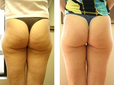 мезотерапия против целлюлита фото до и после