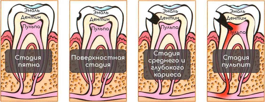 stadii kariesa