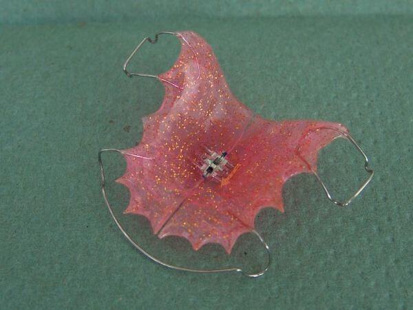 Ортодонтическая пластина с расширяющим винтом