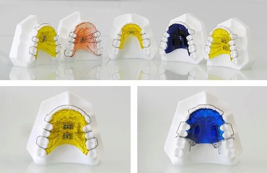 Виды пластиночных ортодонтических пластин