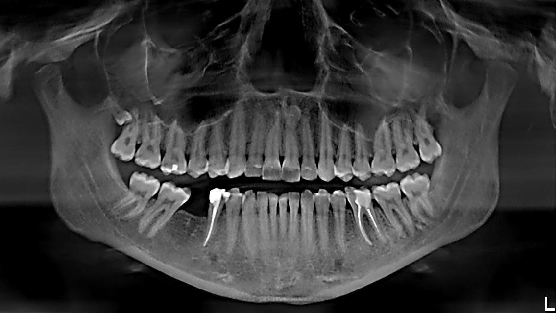 ортопантомограмма