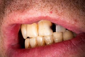 пришеечный кариес передних зубов