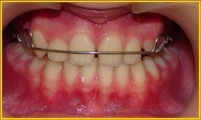 Положение дуги пластины на зубах