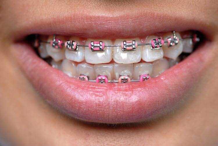 Керамические лигатурные брекеты — что это такое, фото, преимущества, цены
