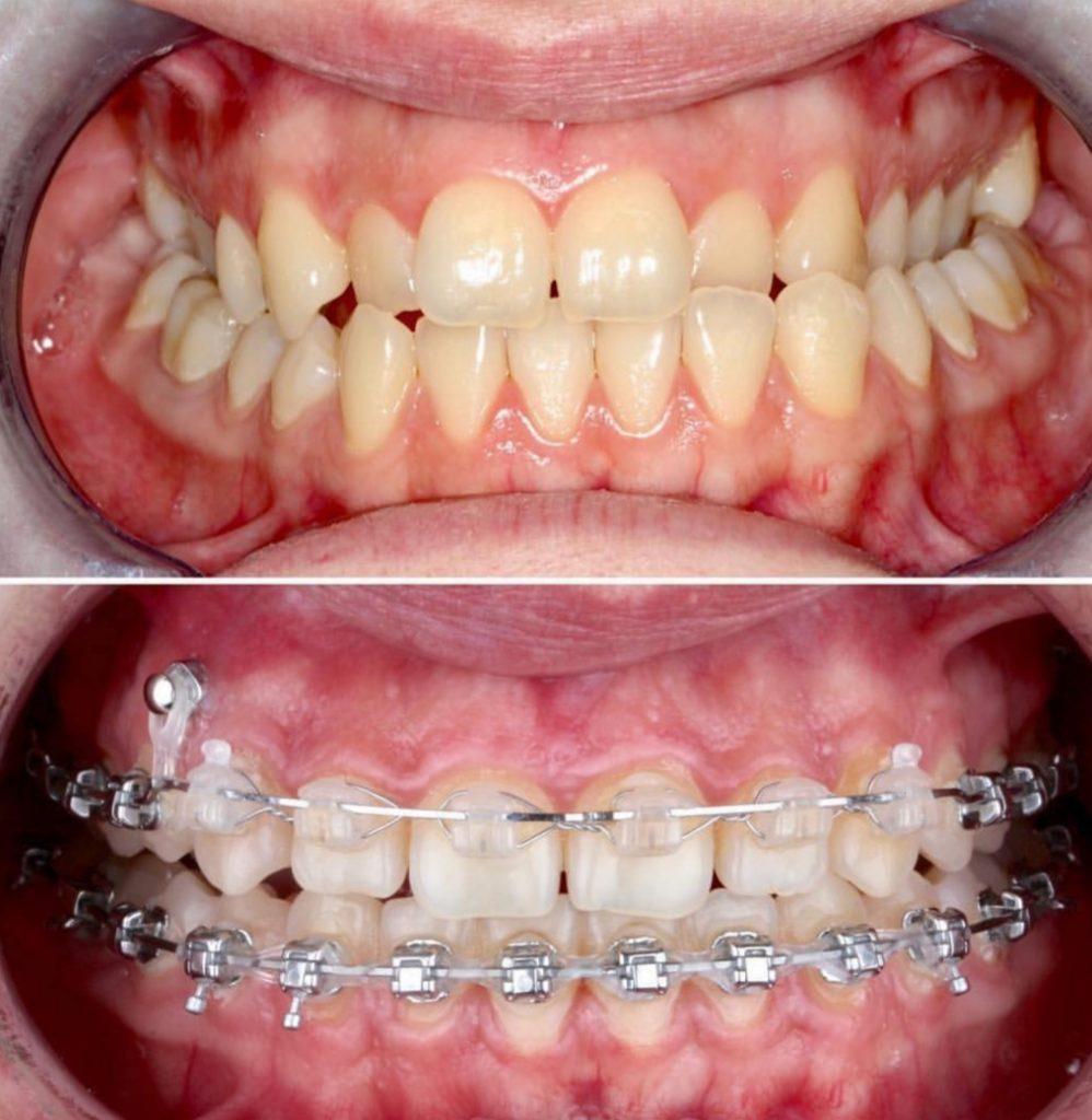 Брекеты в стоматологии Космоденат